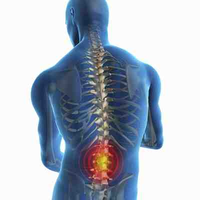 main causes of back pain