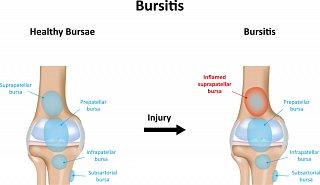 Bursitis Symptoms in Knee