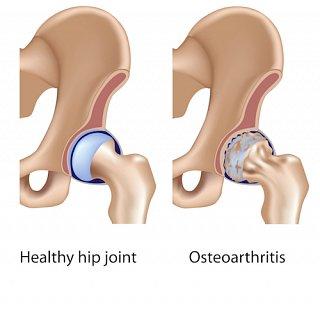 Osteoarthritis in hip