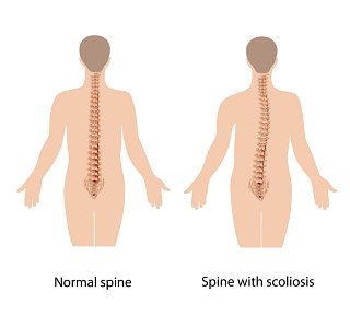 What is Scoliosis
